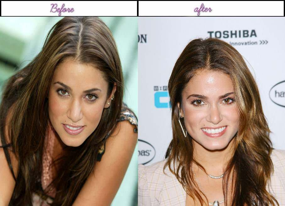 Total Plastic Surgery Brings Nikki Reed More Charm On Her Deal With After Surgery Http
