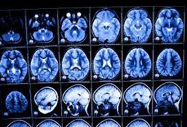 Image result for biomedical images