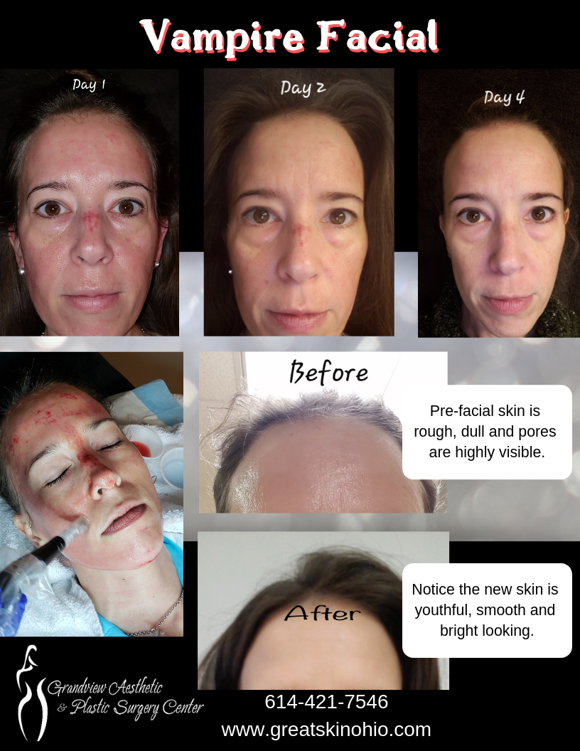 Vampire Facial We Have All Heard Of It We All Want It Now Here Are Some Results First Off T Vampire Facial Facial Before And After Platelet Rich Plasma