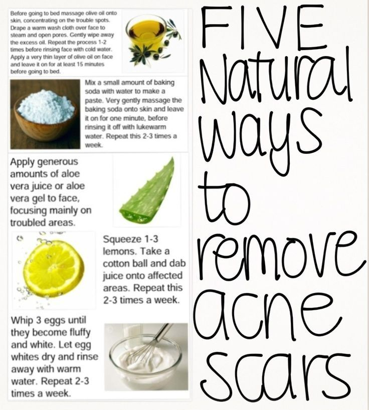 How To Get Rid Of Pimple Scars Overnight Home Remedies
