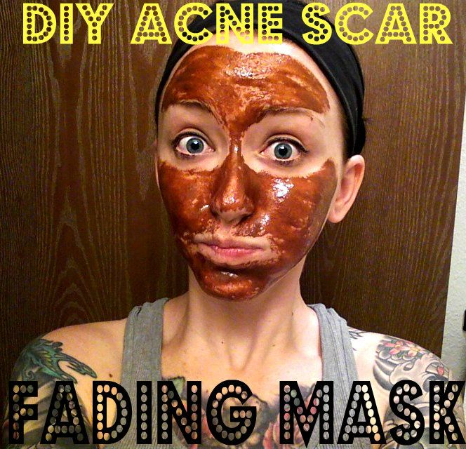 The 25 Best Acne Scar Removal Ideas On Pinterest Acne