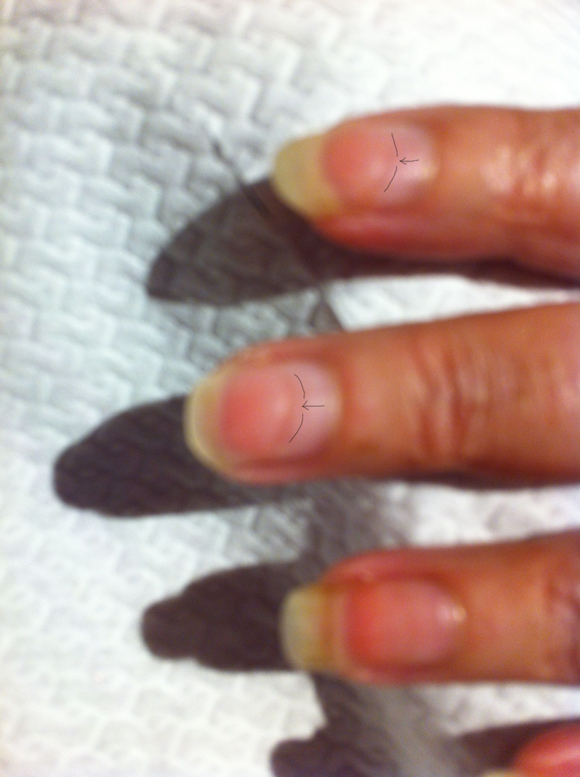 IBX Treatment just been used on this client who had been to a Salon ...