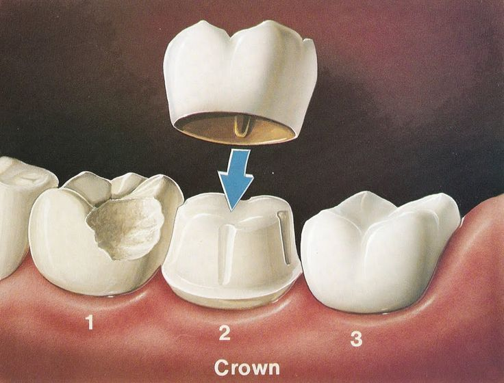 Things You Need To Know About Tooth Crown Replacement