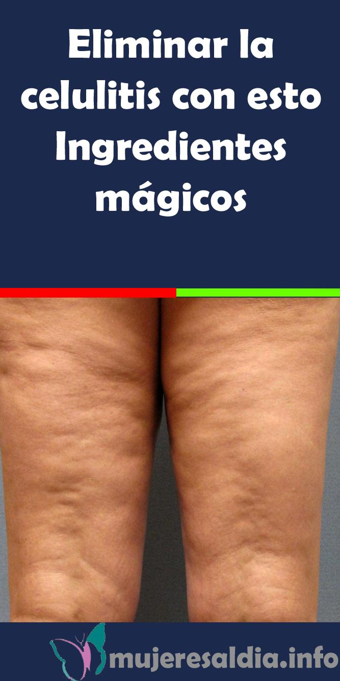 cremas gestation callar celulitis linear unit las piernas