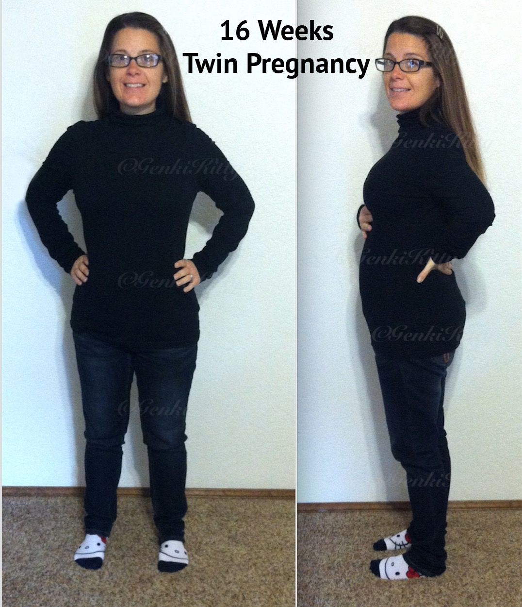 16th week twin pregnancy