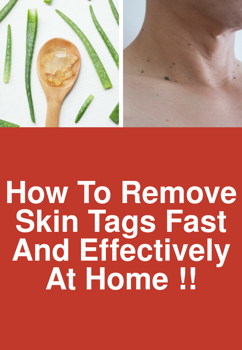 Take Care Of Your Skin With These Simple Steps #skintagremedy