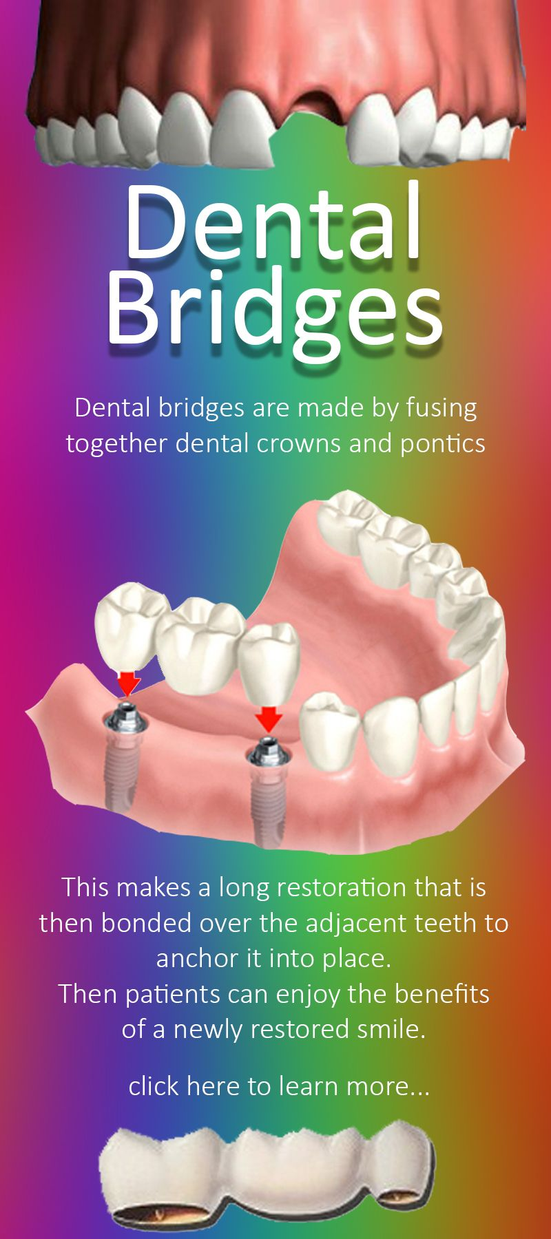 Dental Bridges near Mesquite TX - If you want to learn more about ...