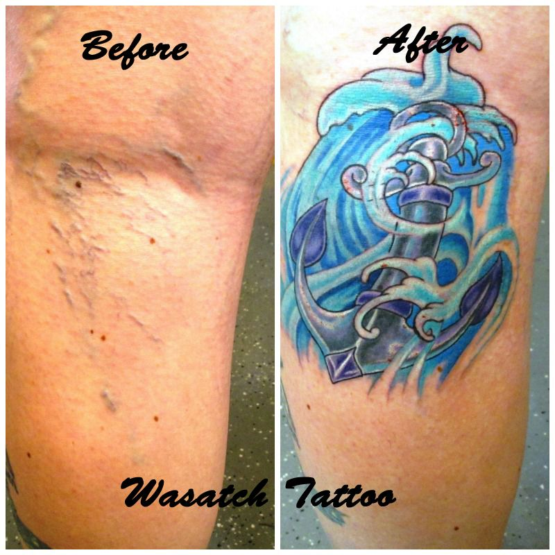 can you tattoo over varicose veins