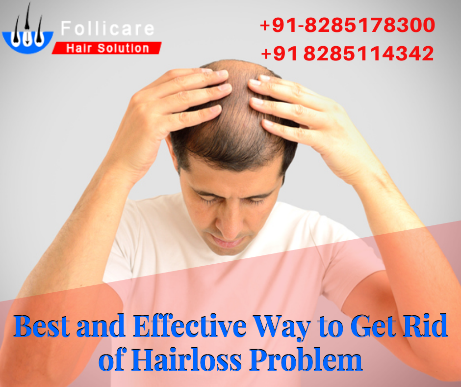 Want to get rid of baldness problem or hair loss problem? Come to follicare hair solution to get the best and effective solution at affordable prices. One call can give your personality back... CALL NOW @ +91-82851-78300  #hair_transplant_surgery_in_india #hair_problem #Kerala #Kochi #Haryana #Himachal #Solan #Srinagar #Bangalore #Chennai #Delhi #Punjab #Canda #UK #America #Newzealand #Australia #Fue_hair_transplant #baldness_problem #hair_care #hair_solution #hair_loss