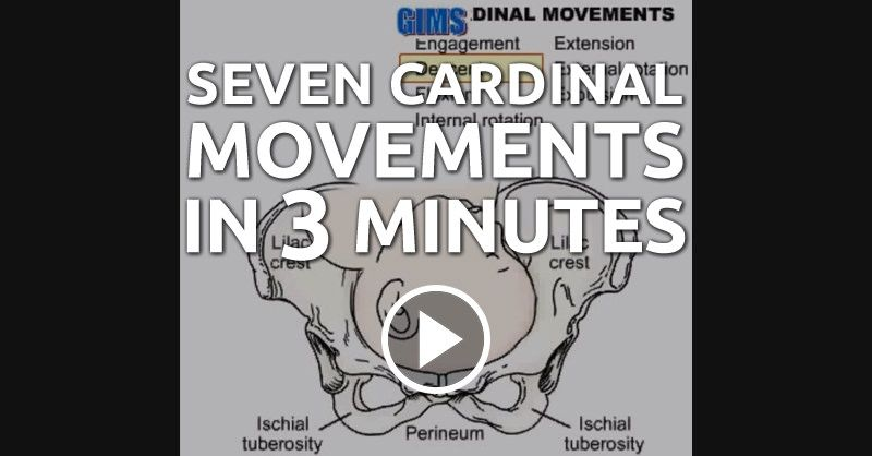 The Seven Cardinal Movements of Birth in 3 Minutes --- Dr. G. Bhanu Prakash provides a presentation on the Seven Cardinal Movements. He goes even more in depth and provides insight into the fetal head rotation in relation to the pelvic width at different intervals. Enjoy this visualization for your maternity exam! --- #nclex #nursing #nclextips #nclex_tips #nurse #nursingschool #nursing_school #nursingstudent #nursing_student