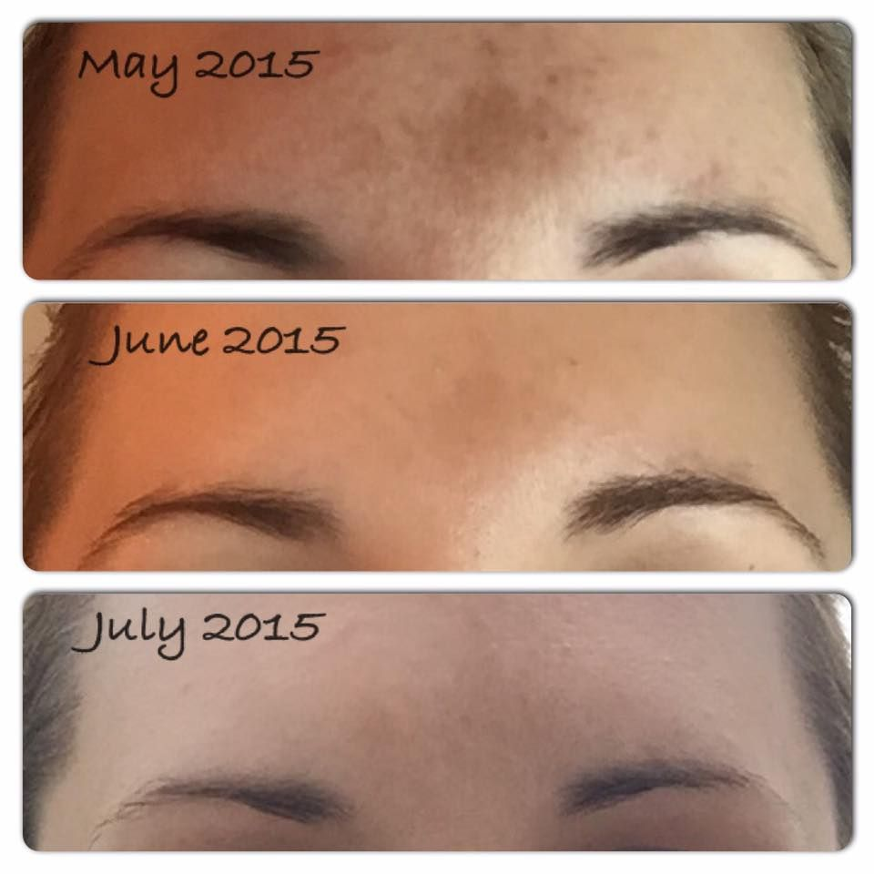 Pin on Solution for treating Melasma, Skin Discoloration ...