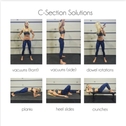 "76bace4d3a C-SECTION SOLUTIONS  HOW TO ELIMINATE THE POOCH AND REDUCE THE ""TUMMY SHELF"""