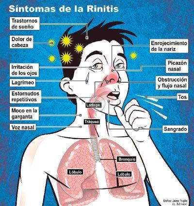 rinitis alergica vasomotora tratamiento