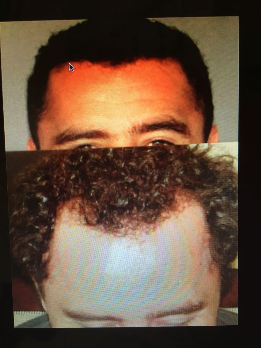 Por menos de lo que gastas en un año en shampoo antiácida recupera tu cabello de manera permanente