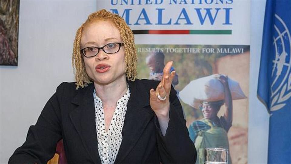 Albinos mutilated in Malawi, activists call for action
