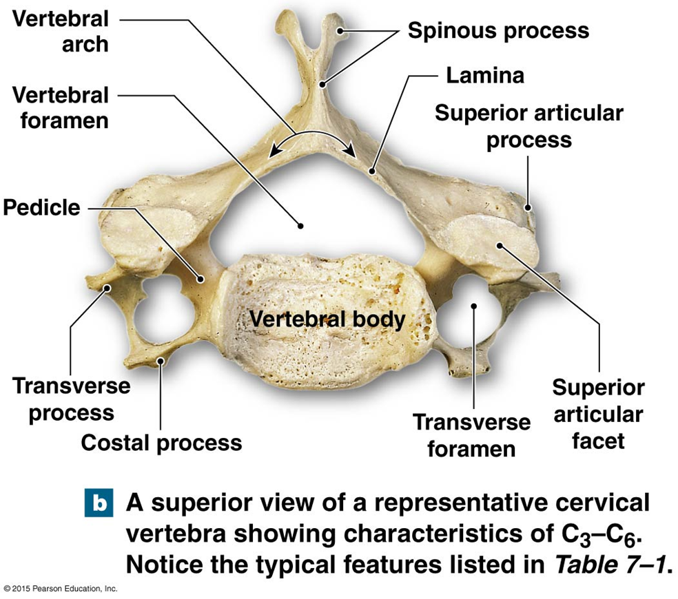 Major components of a typical vertebrae and the vertebral canal ...