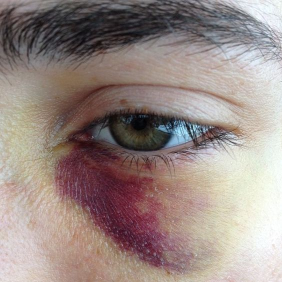 sangriento moreton ojo