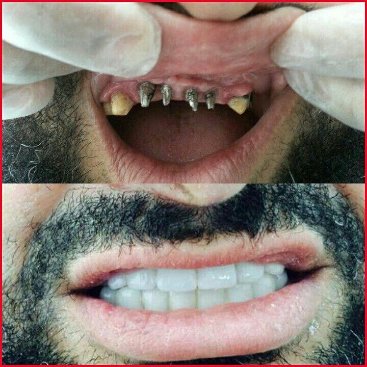 زراعة الأسنان والنتائج الرائعة مركز الطبيب التخصصي لطب الأسنان حيث تنبض الابتسامة بالجمال Face Makeup Halloween Face Makeup Face