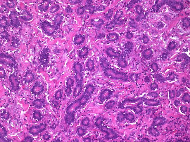 Pathology Outlines - Adenoma