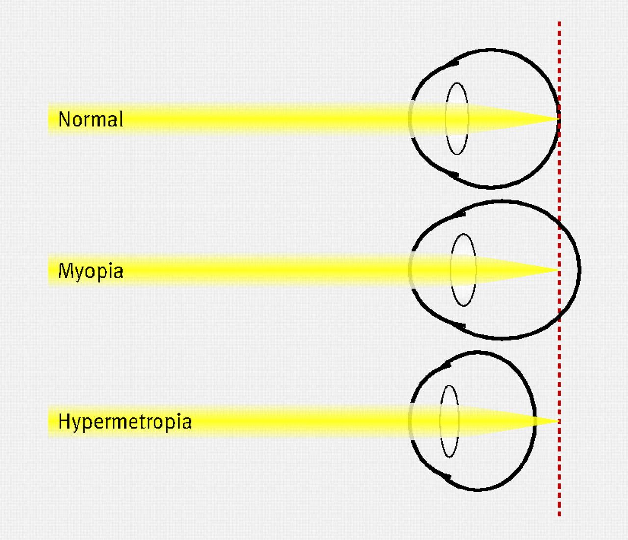 hight resolution of diagram depicting emmetropic normal myopic and hypertropic eyes in myopia light focuses in front of the retina usually because of a long axial length