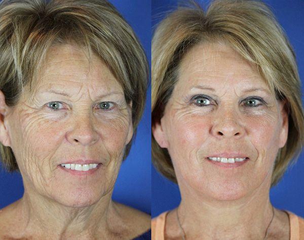 Karen Youthful Reflections Facelift Reflection Lift Fractional Co2 Laser Skin Resurfacing Upp Co2 Laser Resurfacing Laser Skin Resurfacing Skin Resurfacing
