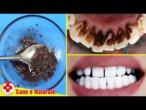 In Soli 5 Minuti – Questo Trucco Vi Aiuterà A Rimuovere La Placca Dentale A Casa Rapidamente