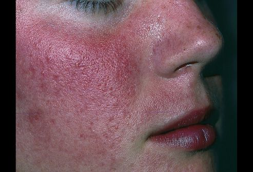 Rosacea Is An Inflammatory Condition Of The Midface