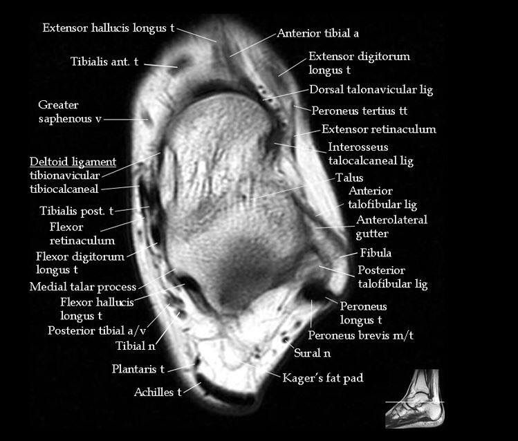 Pin von Varsha Kunwar Gautam auf MRI anatomy | Pinterest