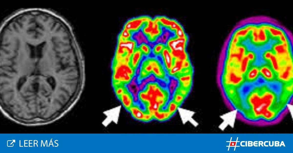 #Avanzan en el mundo investigaciones para obtener un tratamiento que detenga el alzhéimer - CiberCuba: CiberCuba Avanzan en el mundo…