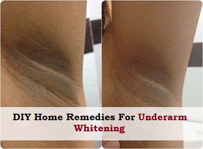 DIY Home Remedies For UnderArm Whitening