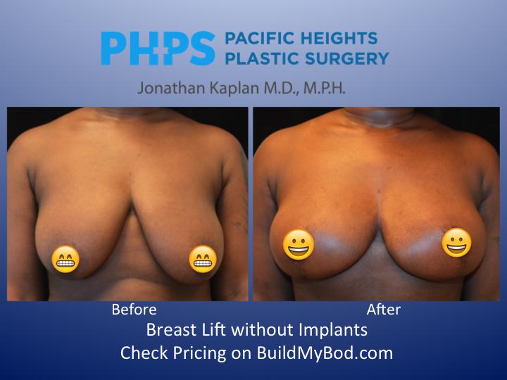 Big breasts lifting displaying