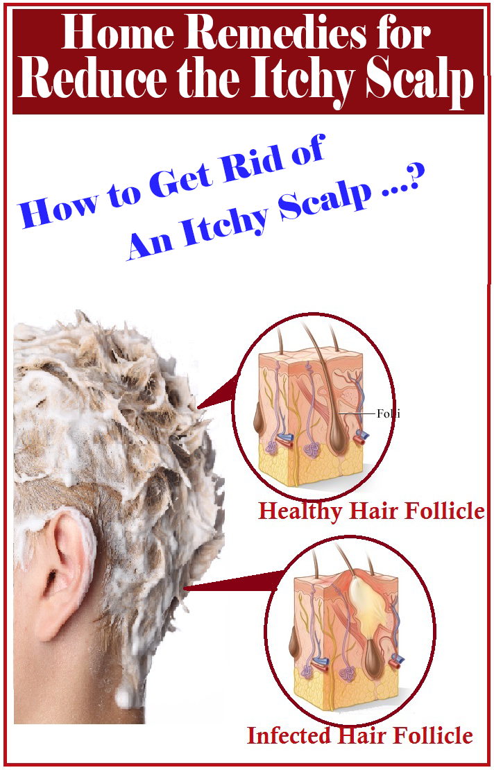 how to get rid of psoriasis on scalp naturally