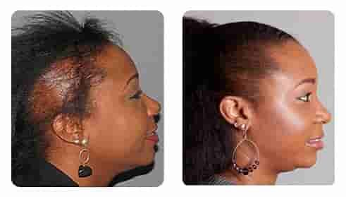 Prices Of Hair Transplantation In Turkey Butterfly Hair Hair