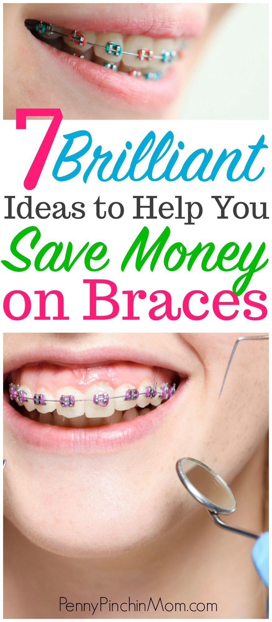 Saving Money on Braces and Expanders Saving money on braces  Orthodontics | Braces | Spacers | Saving money | Budget | kids | Dentist