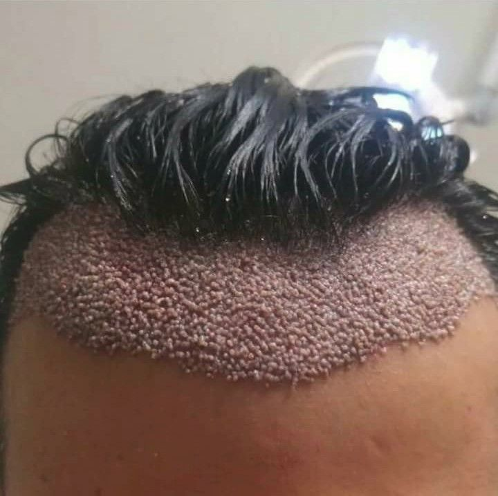 Trypophobia Hair Transplant Makes Me Itchy Clusters Hair