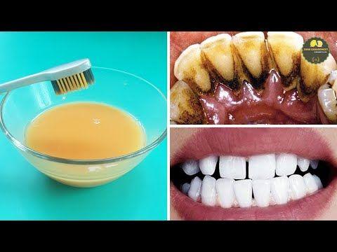 Mit dieser Zubereitung zahnstein selbst entfernen schnell effizient direkt zu Hause