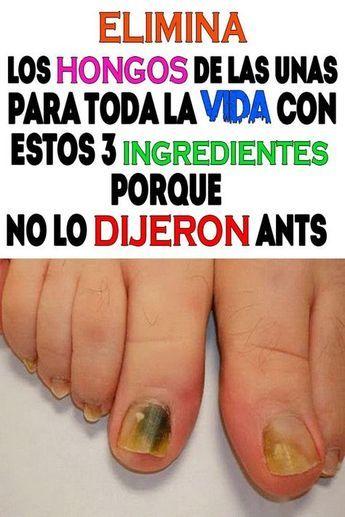 remedio casero para eliminar los hongos de las unas de los pies