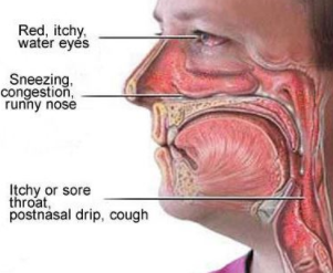 244927c97e0eac4032348979fb385fb4 - How To Get Rid Of Itchy Throat That Cause Cough