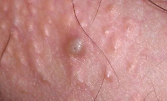 What Does It Mean To Have Hard, Small White Bumps On -7042