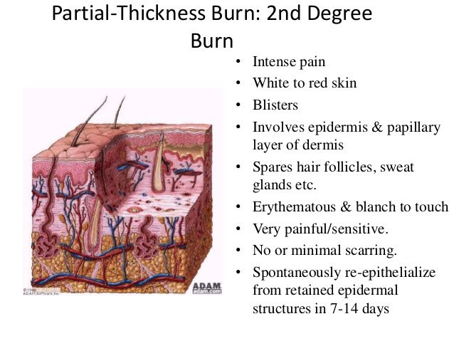 Deep Second Degree Burn Injury To Deeper Layers Of Dermis