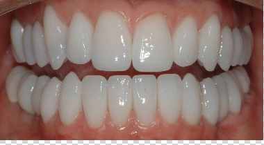 lengthened teeth : You can see the short front teeth and the flattening of Karen's back teeth in the before photos.  We lengthened her teeth and gave her the proper form and function. http://www.rankipedia.com/dentist/dentistprofile/id/125703/baid/82
