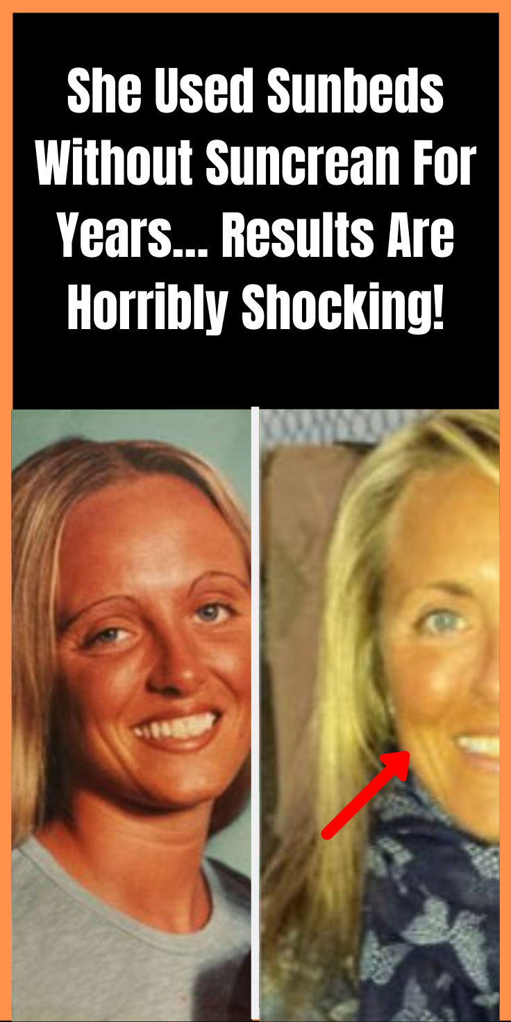 She Used Sunbeds Without Suncrean For Years Results Are Horribly Shocking Shocking Facts Shocking Blue Funny