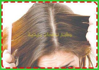 وصفة طبيعية لعلاج القشرة في الشعر Hair Styles Beauty Hair