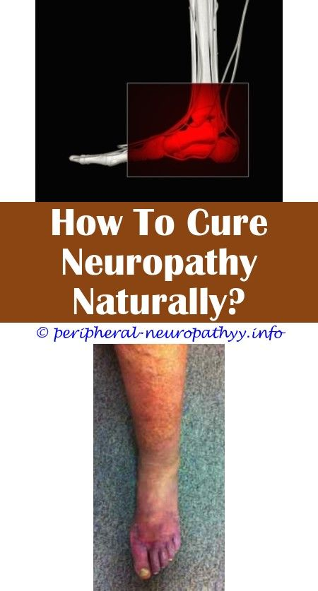Specialist multifocal motor neuropathy.Chemotherapy oxaliplatin neuropathy.Lower extremity neuropathy differential - Peripheral Neuropathy.