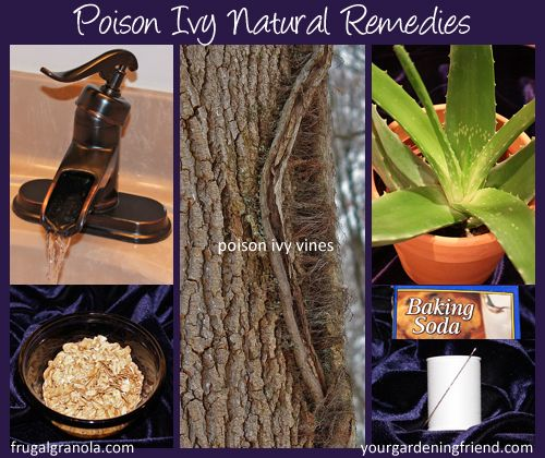 Poison Ivy Natural Remedies
