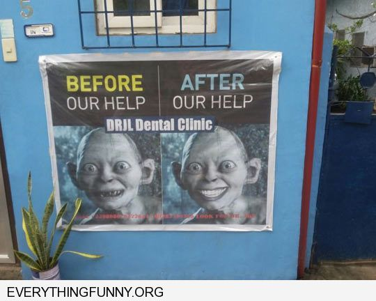 Funny Billboard Ad Gollum Lord Rings Teeth Before After Dentist Dental Advertisement