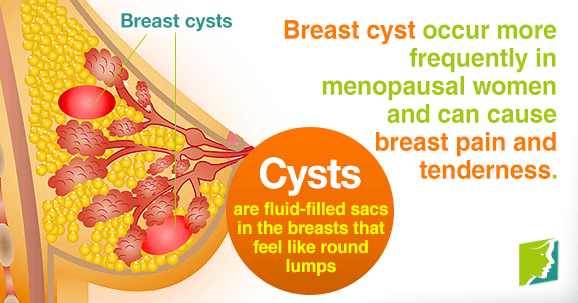 breast menopausal Causes pain of