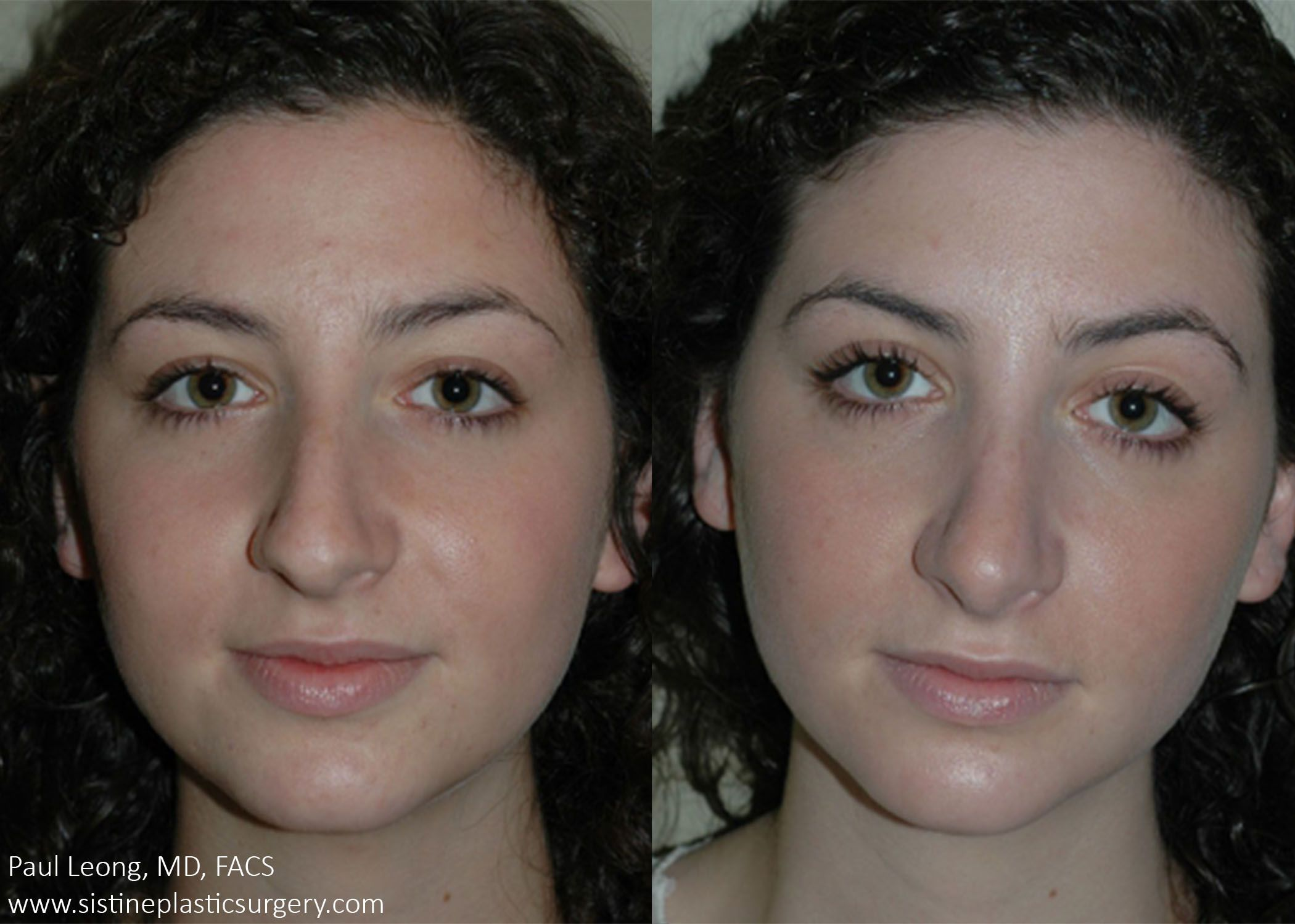 Before/After Rhinoplasty Dr. Leong Sistine Plastic