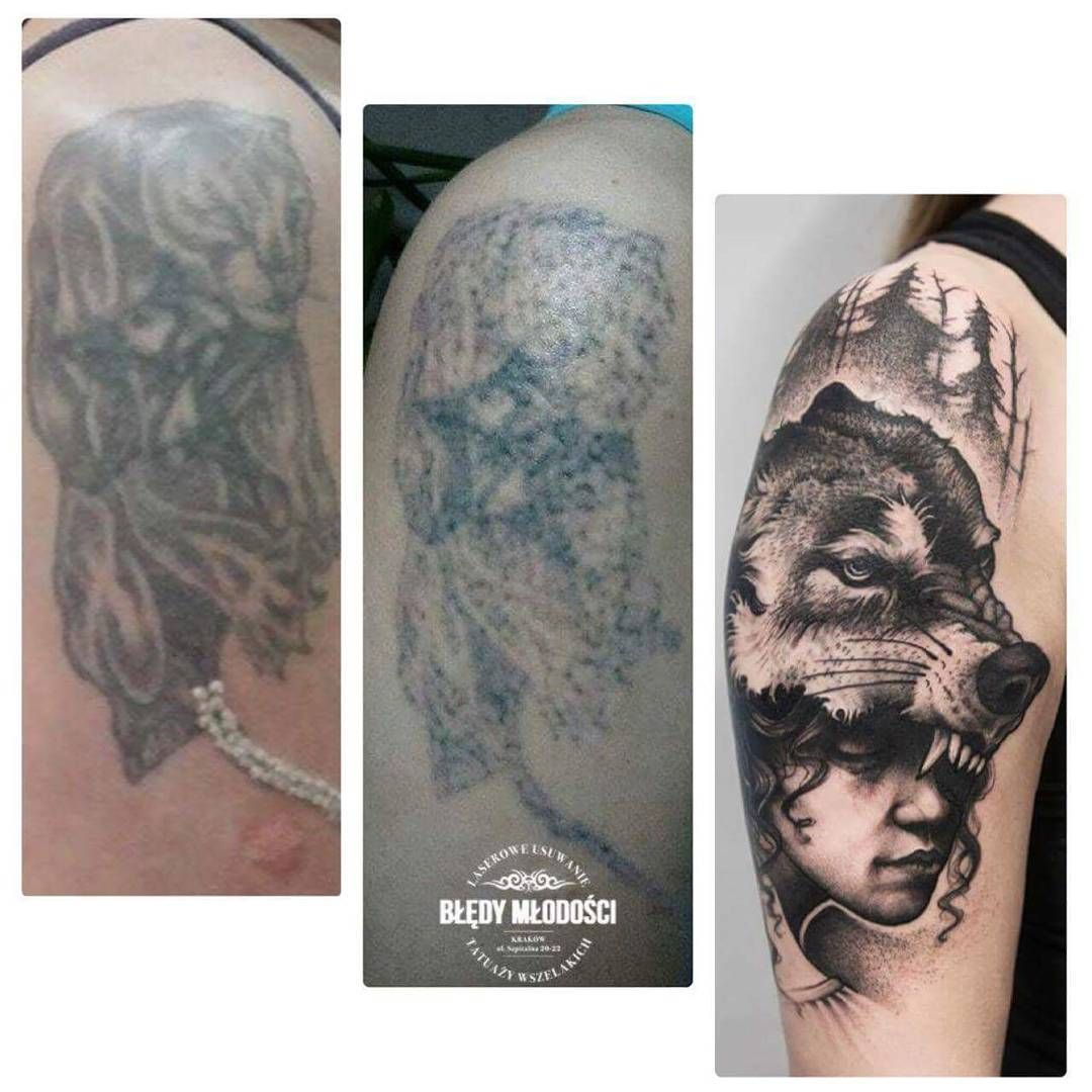 You can see the result after one session with laser tattoo