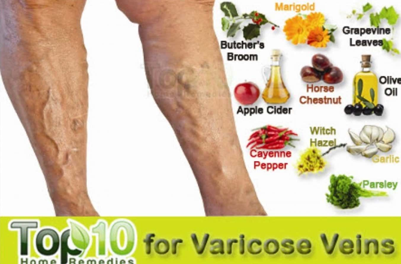best food for varicose veins